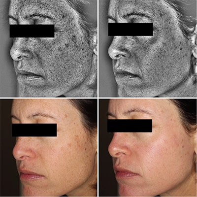 After one Halo treatment treated by Dr Christina Sander, dermatologist